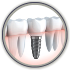 Dental implants dentist in Shreveport