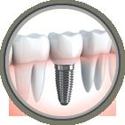 Dental implants dentist in Shreveport