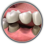 Dental crowns and bridges Shreveport