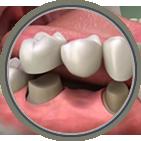 Dental crowns and bridges Shreveport