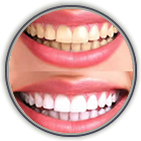 Teeth Whitening Shreveport