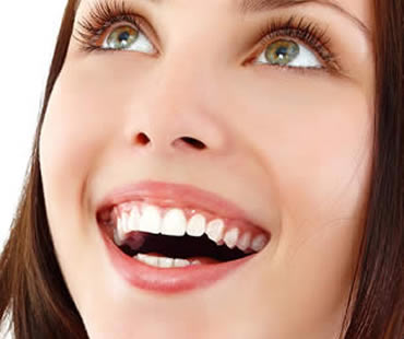 Who Could Benefit from Dental Veneers?